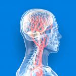 首の骨と椎骨動脈解離の正しい知識。自分の体は自分で守りましょう。